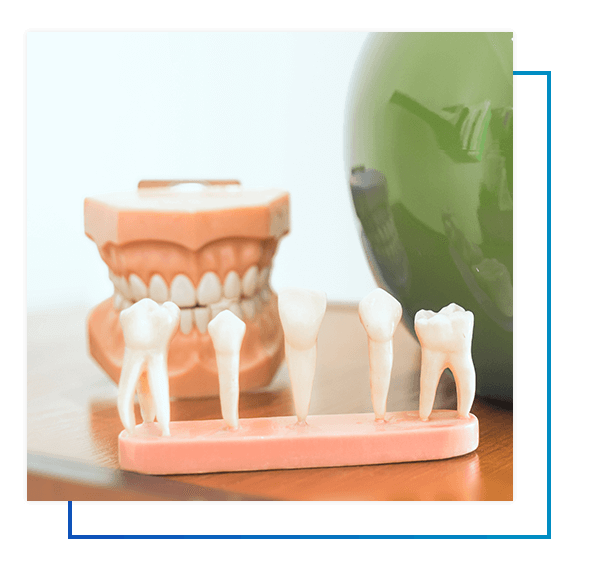 What Is A Periodontal Scaling