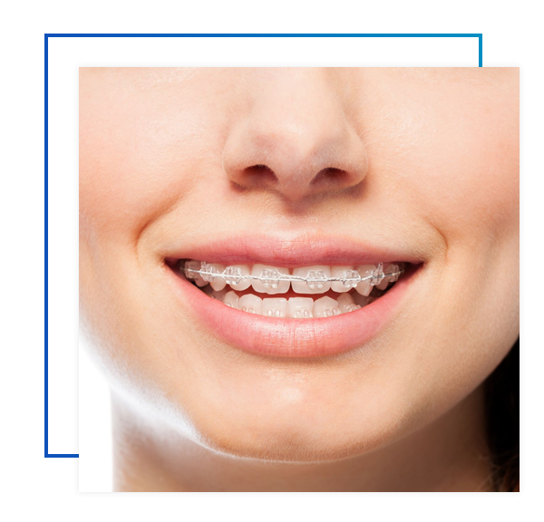 Who Is A Candidate For Braces